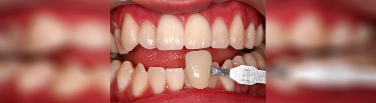 Cure odontoiatriche all'estero, in Romania per Voi ! La cura per i vostri denti a basso costo! Vi invitiamo a vedere qui e contattaci subito: http://www.intermedline.com/dental-clinics-romania/ #clinicadentale #clinicadentaleinRomania #clinicaodontoiatrica #clinicaodontoiatricainRomania #turismodentale #turismodentaleinRomania #curedentali #curedentaliinRomania #trattamentoodontoiatrico #trattamentoodontoiatricoinRomania