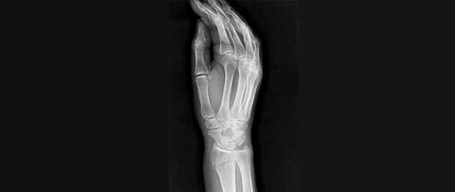 Восстановление и реабилитация после перелома запястья, как лечить перелом запястья руки, чем опасны переломы костей запястья руки и так далее