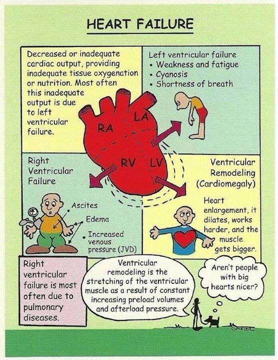 43 best Diastolic Heart Failure images on Pinterest ...