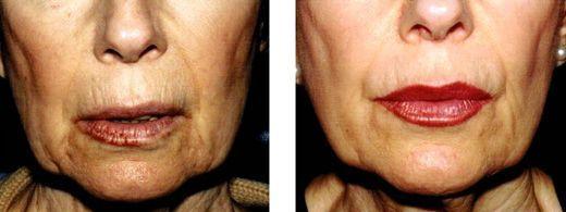 botulinum toxin wrinkles