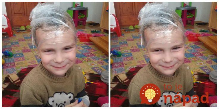 Deti si zo školy priniesli vši: Vďaka tomuto perfektnému nápadu sme sa ich zbavili za 2 hodiny a bez šampónov z lekárne!
