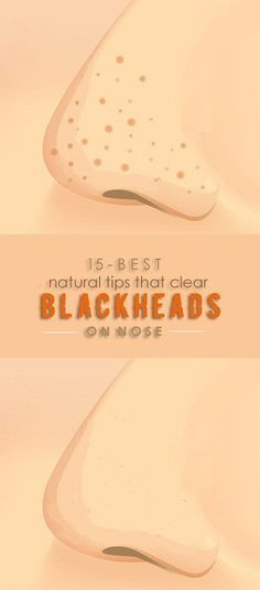 How To Remove Blackheads On Nose At Home Permanent…