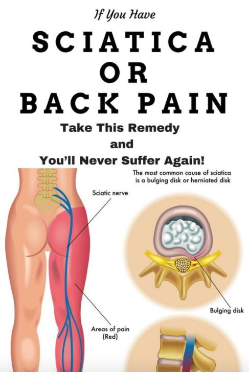 If You Have Sciatica or Back Pain, Take This Remedy and You'll Never Suffer Again! – Toned