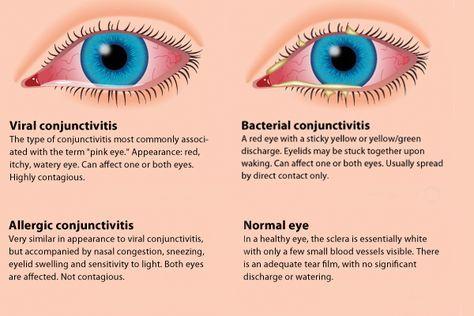 What is pink eye? What are pink eye symptoms? #pinkeye #childrenshealth