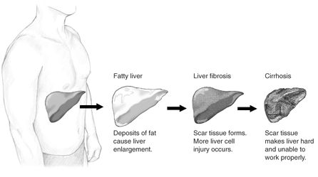 """Nonalcoholic steatohepatitis or NASH is a common, often """"silent"""" liver disease. It resembles alcoholic liver disease, but occurs in people who drink little or no alcohol. The major feature in NASH is fat in the liver, along with inflammation and damage. Most people with NASH feel well and are not aware that they have a liver problem. Nevertheless, NASH can be severe and can lead to cirrhosis, in which the liver is permanently damaged and scarred and no longer able to work properly."""