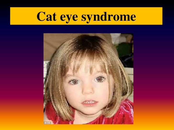 14 best tar syndrome images on pinterest