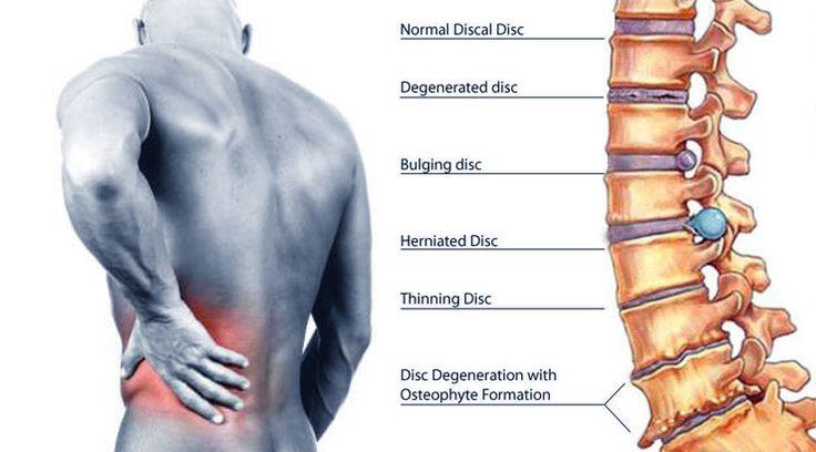 L'exercice peut aider à réduire la douleur liée à une hernie discale. Cependant, certains des exercices peuvent mettre une pression supplémentaire sur la hernie discale.