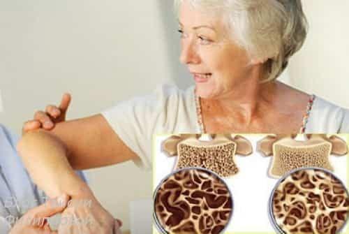 Остеопороз у женщин после 50 лет