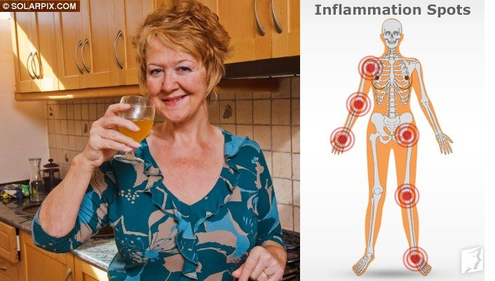 Apple Cider Vinegar Cured Me of Excruciating Arthritis in TWO Weeks  http://www.healthyfitlifetime.com/healthy/apple-cider-vinegar-cured-excruciating-arthritis-two-weeks/