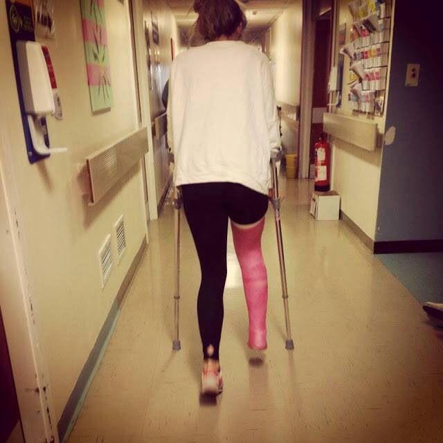 Leg Cast/Llc Cast   Slc/Llc Cast   Pinterest   Leg cast ...