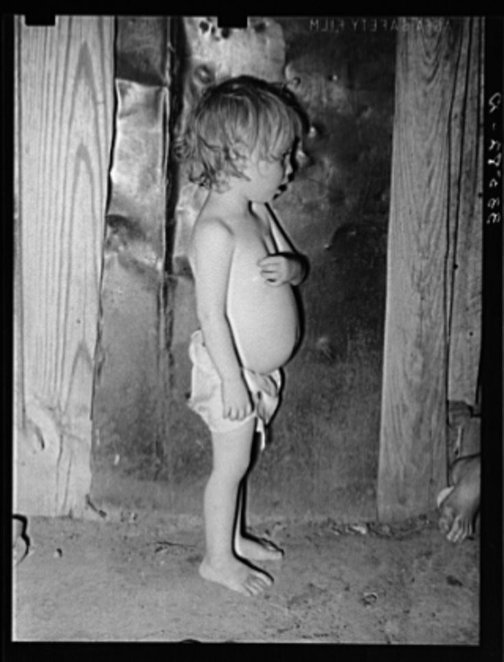 Child of agricultural day laborer living near Tullahassee, Oklahoma. Notice the distended stomach, which is indicative of malnutrution and unbalanced diet with too many starchy foods. This condition is prevalent throughout the tenant farmer and day laboring families in Oklahoma | Library of Congress