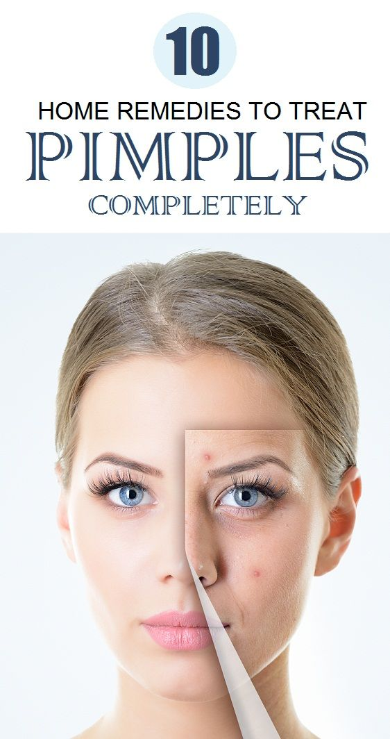 10 Simple Home Remedies for Pimples