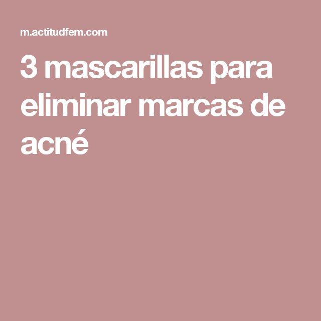 3 mascarillas para eliminar marcas de acné