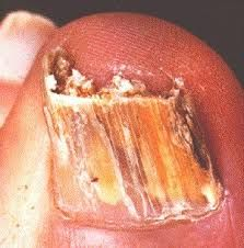 You have to see to believe how this will clear toe fungus!