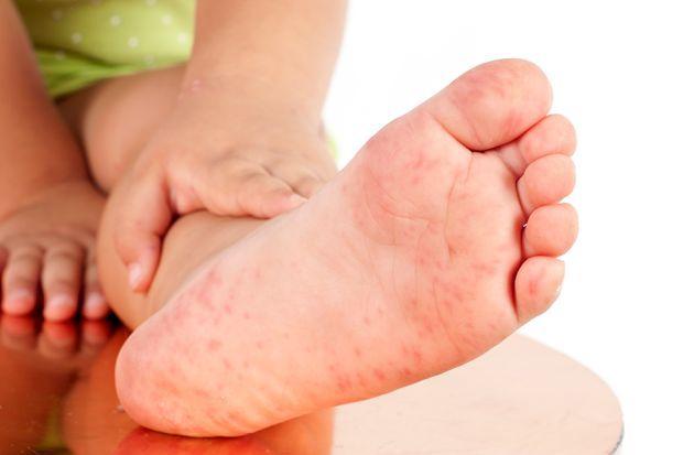 Übelkeit, rote Flecken, Fieber: Die Hand-Fuß-Mund-Krankheit ist eine ansteckende Viruserkrankung, die häufig bei Kindern auftritt. Aber auch Erwachsene können sich infizieren. Alles Wichtige rund um die Erkrankung finden Sie in diesem Artikel.