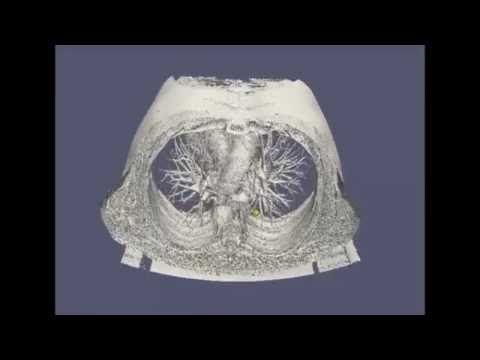 Prédire l'évolution du volume & de la forme de la tumeur (video) #cancer