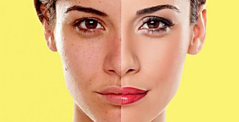 Como disfarçar olheiras e cobrir manchas sem ficar com a pele branca ou escura demais