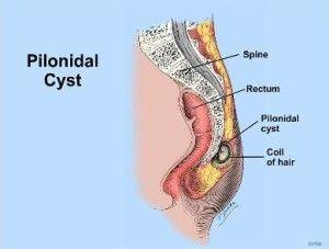 1000 ideas about pilonidal cyst on pinterest remedies home  : pilonidal cyst diagram - findchart.co