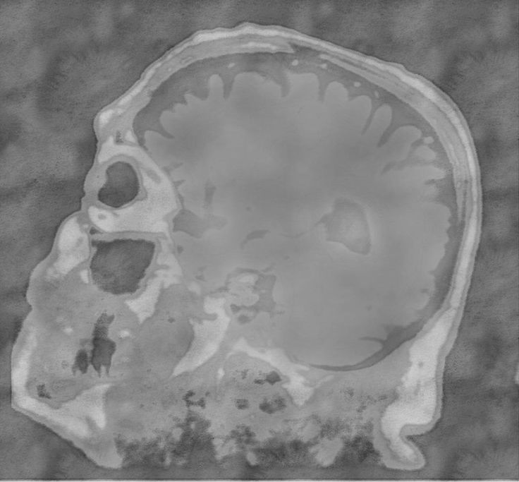 """""""MRI"""" http://indiegogo.com/projects/neuropsychartistry"""