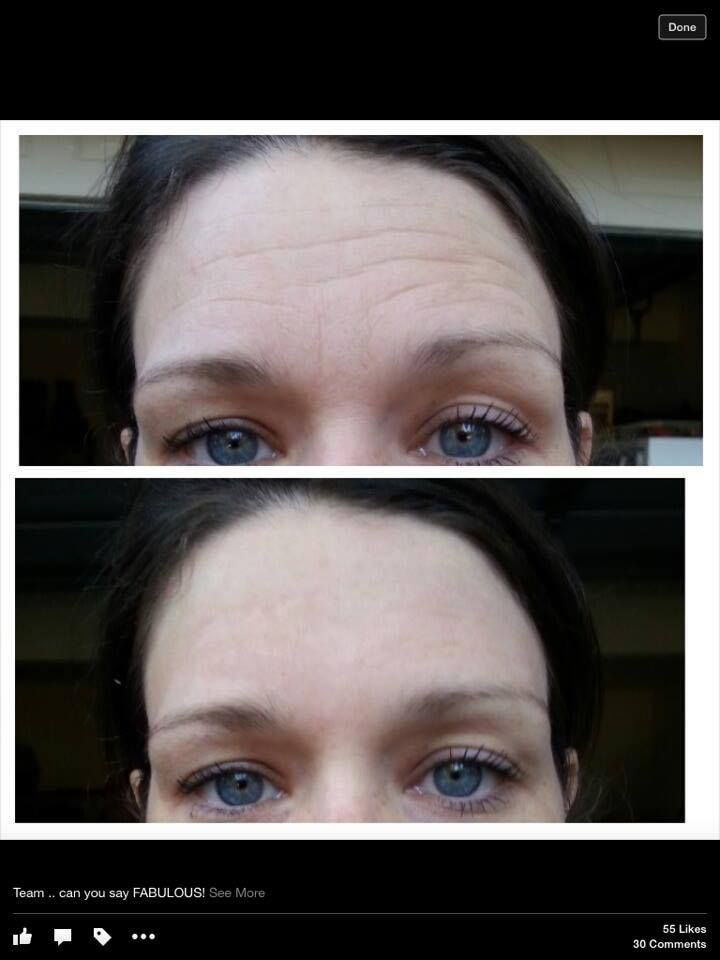 What is Instantly Ageless? Instantly Ageless™ is a powerful anti-wrinkle microcream that works quickly and effectively to diminish the visible signs of aging. The revolutionary ingredient is argireline: a peptide that works like botox—without the needles. Instantly Ageless™ revives the skin and minimizes the appearance of fine lines and pores for a flawless finish.  Its simply amazing!!...see use over at www.facebook.com/hugh.milbourn.1 or http://www.fillinitink.jeunesseglobal.com/