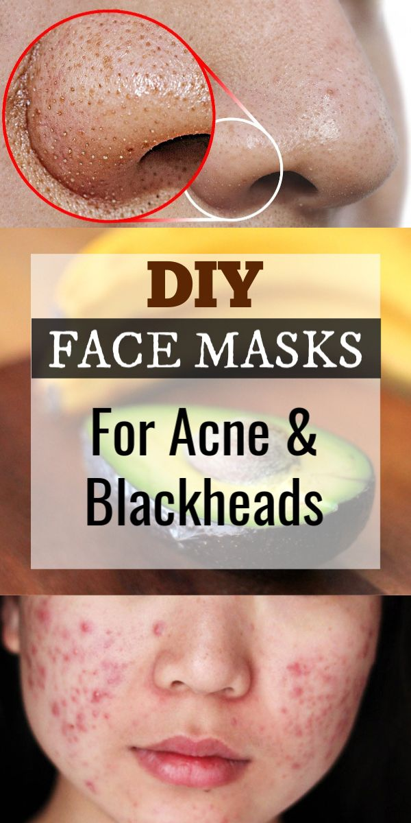 2 Ingredient DIY Face Masks For Acne And Blackhead…