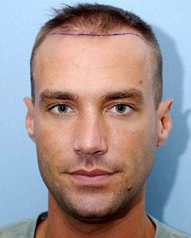 Following in the footsteps of Wayne Rooney, heartthrob and famous 'IT' boy about town, Calum Best, has been added to the list of celebrities,who have had a #hairtransplant procedure.