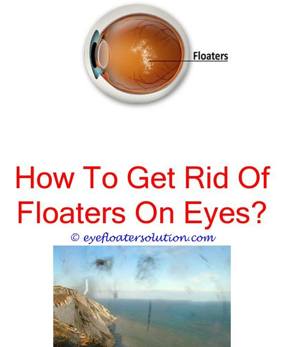 how to cure floaters in eye – Anexa Beauty