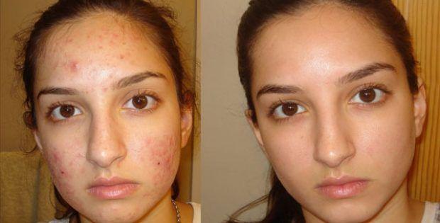 Ce Masque enlève Magiquement vos taches, Cicatrices d'acné ou vos rides après la deuxième utilisation