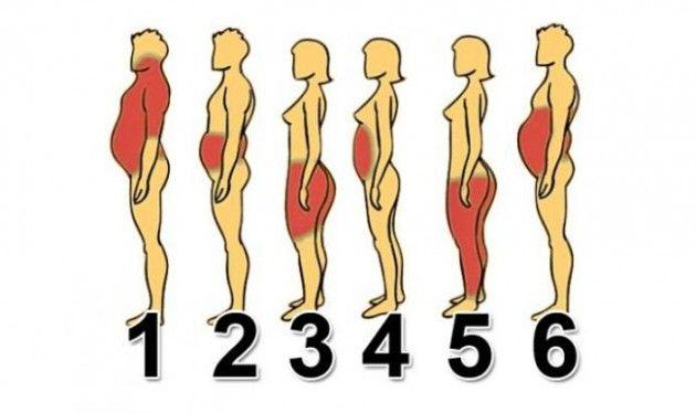 Válassz az ábrák közül, hogy melyik testrészed hajlamos a hízásra! Tudd meg, hogy mi az oka a plusz kilóidnak!