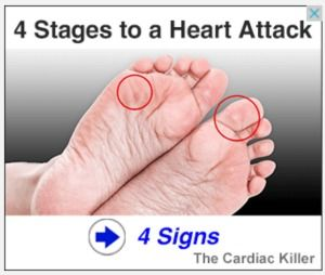 Do you know how to recognize heart attack symptoms? A heart attack usually occurs when there is blockage in one of the heart's arteries. This is an emergency WATCH VIDEO NOW