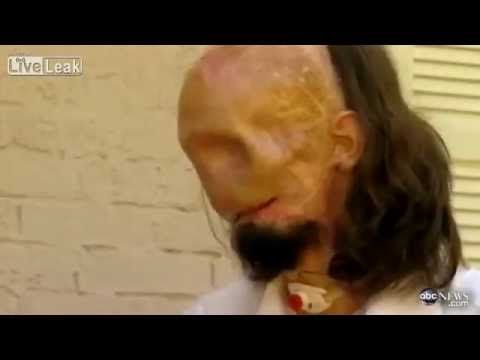 man lost his face in electrocution accident - YouTube
