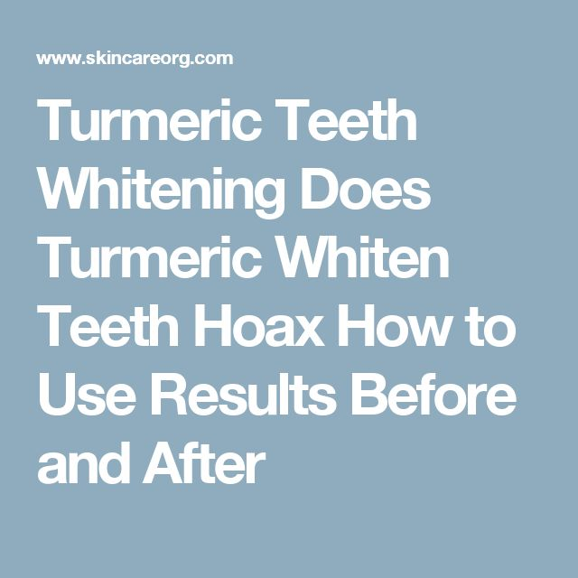 Whiten Teeth With Turmeric: Does This Really Work ... |Turmeric Teeth Before And After