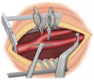 Fig 3: ouverture de la carotide