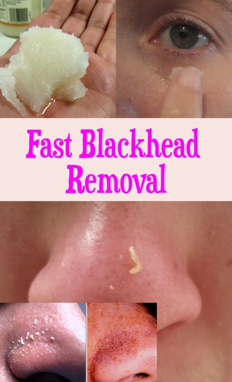Fast Blackheads Removal - Peek-IT