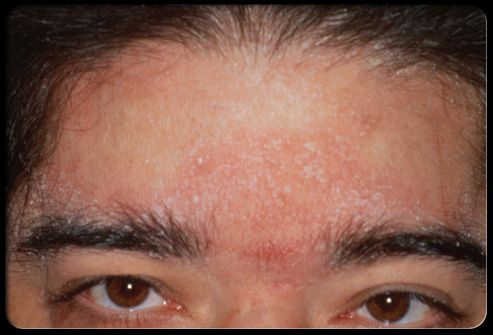 Seborrheic Eczema Seborrheic Dermatitis Is A Form Of