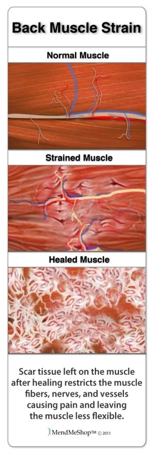 Back strains can cause back pain and muscle spasm. Left untreated, scar tissue build up is typically the result.