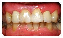 Teeth bonding – Need to repair missing, worn or decayed teeth? Consult Blackburn, Melbourne based teeth bonding dentists for white fillings, dental bonding on 03 9877 2035. http://www.healthysmiles.com.au/cosmetic-dentistry/bonding-and-white-filings.html