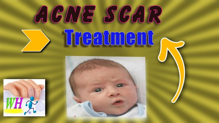 Aacne scar treatment,cne treatment, how to get rid of acne fast, how to ...