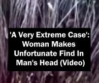 'A Very Extreme Case': Woman Makes Unfortunate Find In Man's Head (Video)