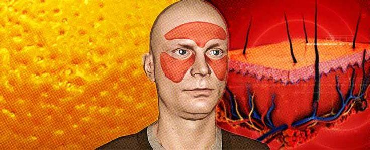 Celulitis facial: prevención y tratamientos  http://www.infotopo.com/estetica/belleza/celulitis-facial-prevencion-y-tratamientos