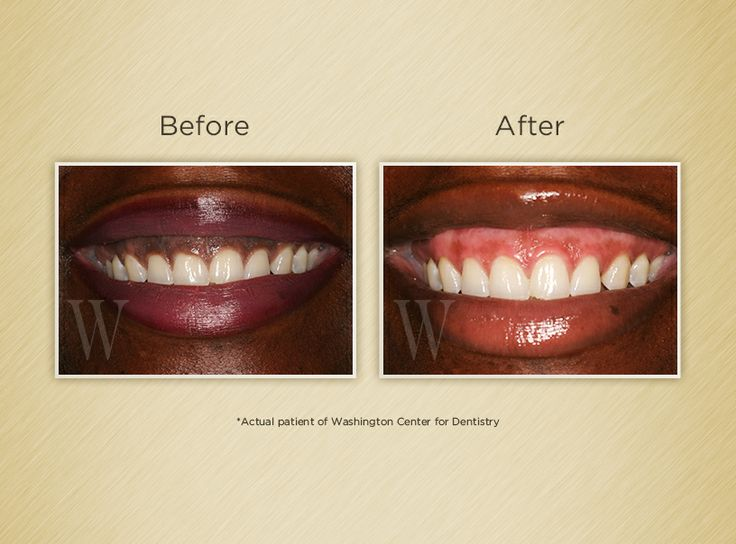Gum Bleaching - Before & After
