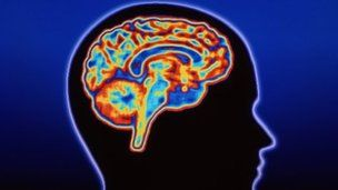 The brains of teenage girls with behavioural disorders are different to those of their peers, UK researchers have found.