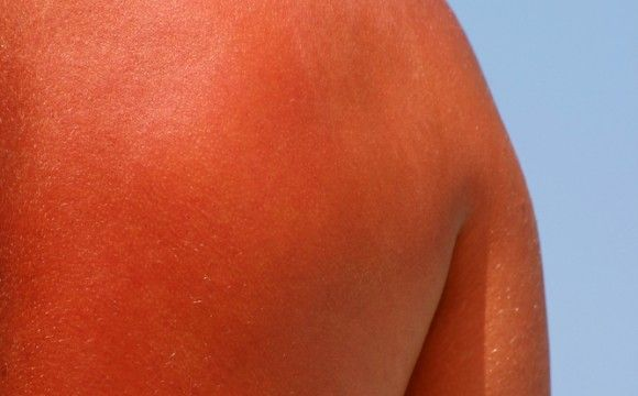 sunburned back