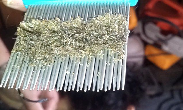 A video shows a mother combing millions of squirming insects out of her daughter's hair, which experts have identified as an extreme case of head lice.