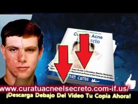 Cura Tu Acne El Secreto  Tratamiento del acne en el embarazo - http://solucionparaelacne.org/blog/cura-tu-acne-el-secreto-tratamiento-del-acne-en-el-embarazo/