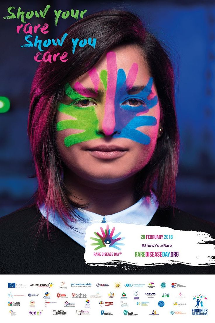 "Feb 28th is #rarediseaseday  In Australia, Rare Diseases are defined as ""a condition, syndrome or disorder that affects 1 in 10 000 people or less"" (The Australian Therapeutic Goods Authority).  To date, there are believed to be more than 8000 known rare diseases.  The Ehlers-Danlos Syndromes, Marfan Syndrome & Loeys-Dietz Syndrome are three of the Rare Conditions that members of our Hypermobility Connect community are living with.   🖤🖤🖤"