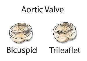 Bicuspid Aortic Valve | Congenital Heart Defects UK  http://www.chd-uk.co.uk/types-of-chd-and-operations/bicuspid-aortic-valve/