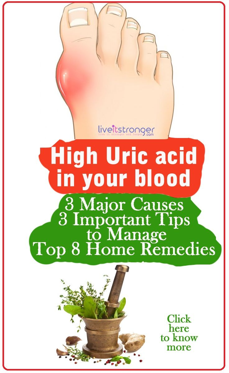 How to reduce high uric acid in your body naturally. #hyperuricemia causes gout a painful form of arthritis. Foods to avoid in gout and home remedies for high uric acid.