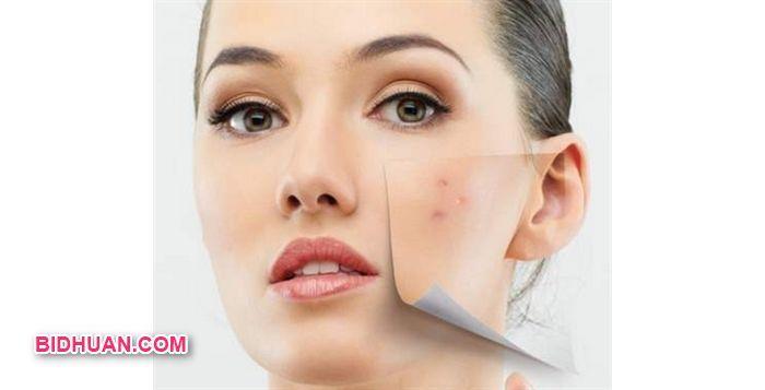 Cara Pengobatan Jerawat Dengan Serum Vitamin C yang Tepat - Lihat selanjutnya http://bidhuan.com/tips-kecantikan/42358/cara-pengobatan-jerawat-dengan-serum-vitamin-c-yang-tepat/
