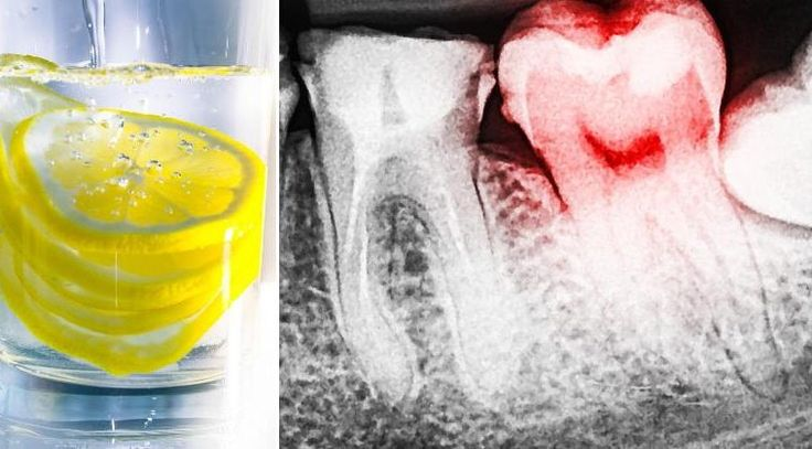 Lemon And Lemon Juice Are Destroying The Enamel of Your Teeth. Here is How to…